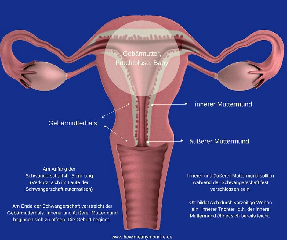Trichterbildung innerer Muttermund
